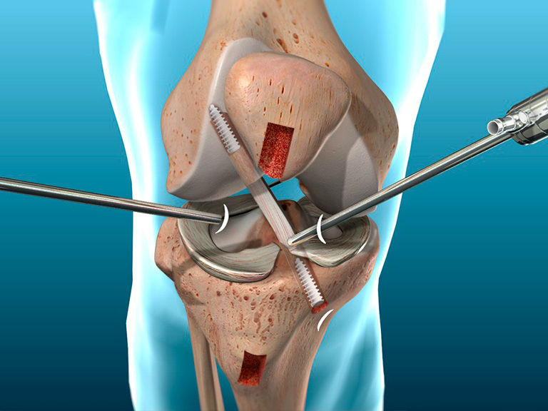 Ligament Repair Surgery